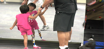 Young Girl With Prosthetic Leg Looking In Mirror