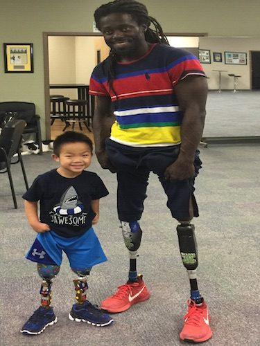 Charlie Learns to Walk on Two Prosthetic Legs – with a Little Help from his Friends