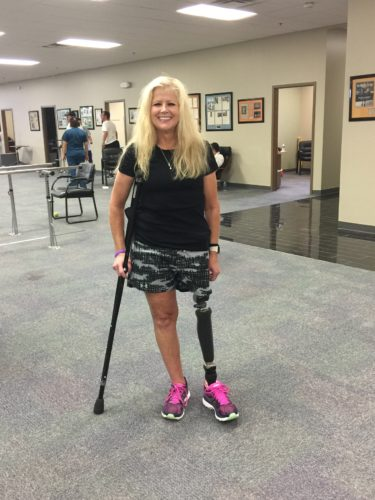 Dana, Hip Disarticulate: Amazing Story of Survival and Perseverance