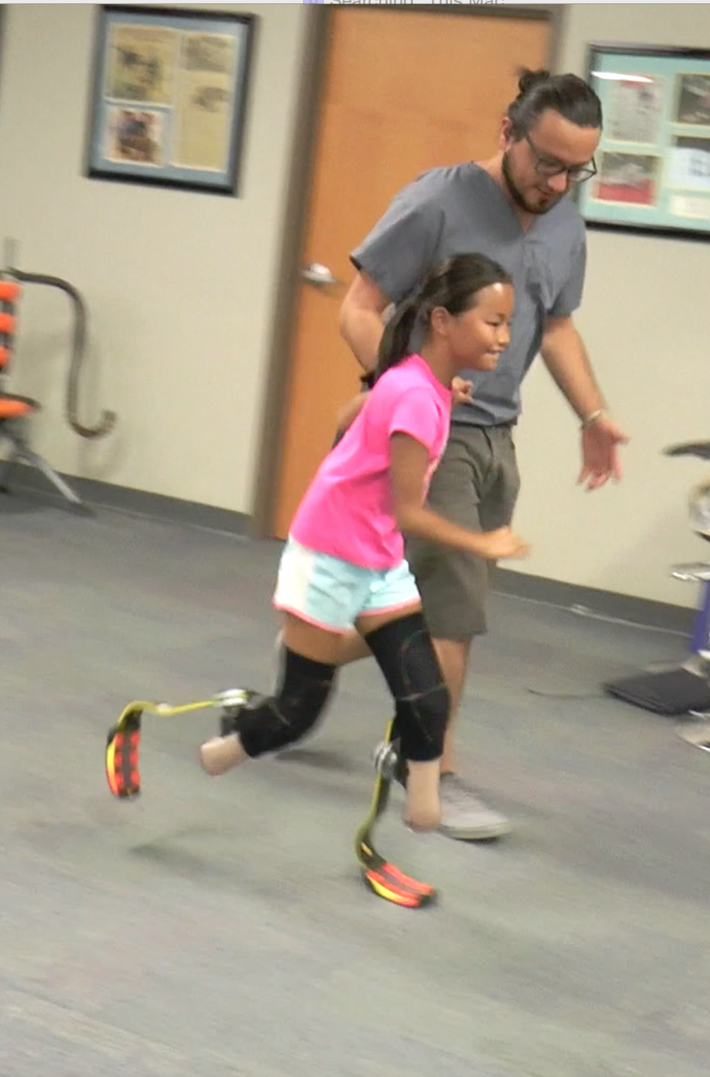 Ruthie Learned to Use a Running Leg/Blade in just 10 minutes!