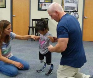 Young Girl Walking On Prosthetic Legs