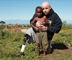 Man with prosthetic leg and young child